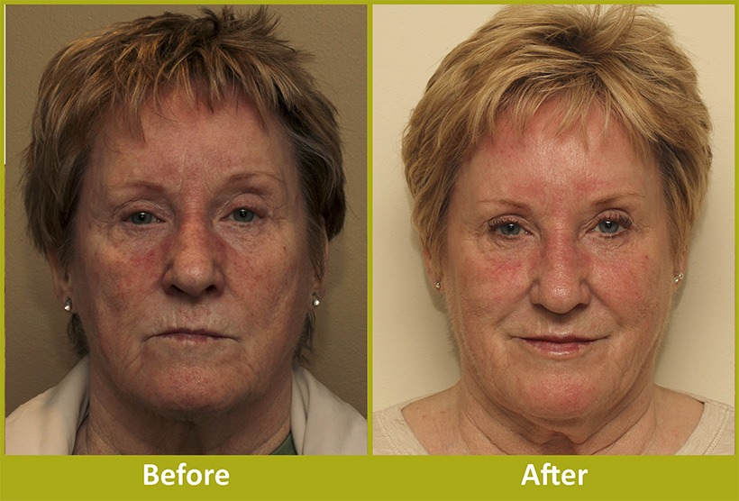 Facial Rejuvenation Before After 1