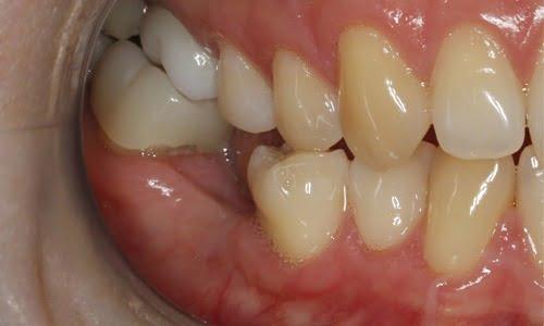 Implants 1before