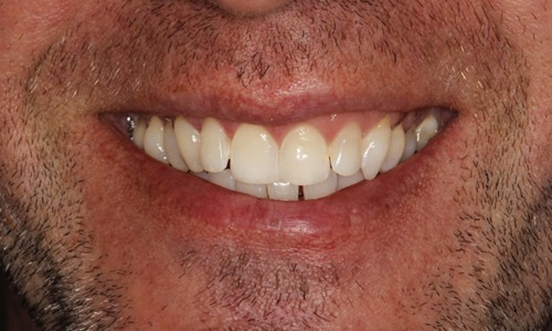 Whitening Jim After