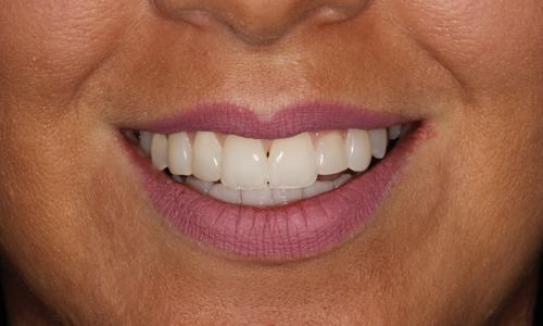 Whitening Laura After