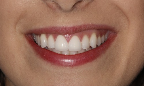 Whitening Lisa After