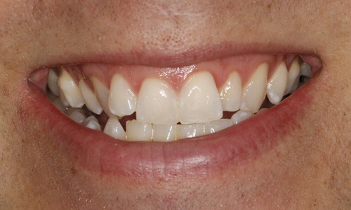 Whitening Pete After
